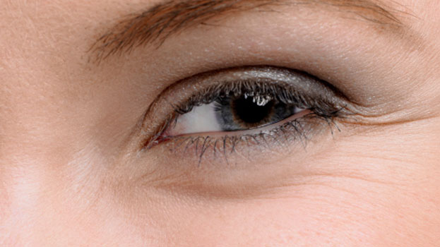 Botox versus Laser for Eye Wrinkles