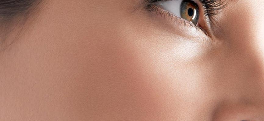 Dark-Skin-Spots