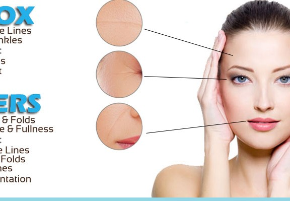 botox-and-fillers